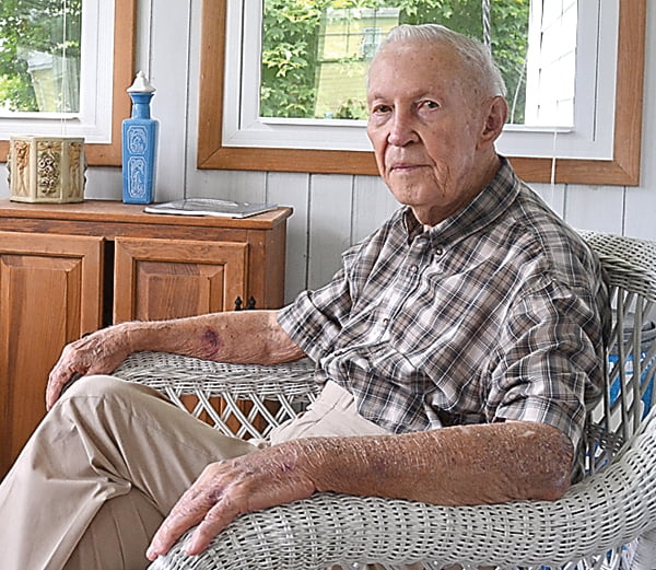 "Herman ""Butch"" Butcher spends a lovely summer day at his home in Green Bank. Butcher was drafted at the age of 19 to serve in World War II. S. Stewart photo"